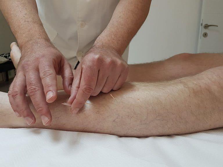 Prevent Split - akupunktura